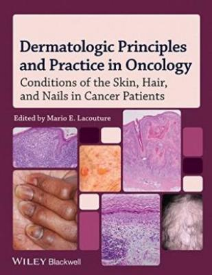 Dermatologic Principles And Practice In Oncology Conditions Of The Skin Hair And Nails In Cancer Patients (Hb 2014)