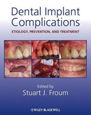 Dental Implant Complications (Hb 2010)